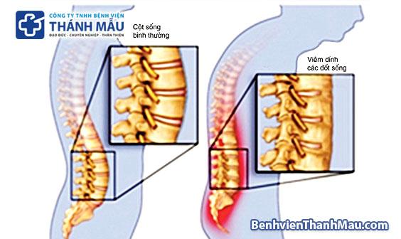 viêm cột sống dính khớp là gì