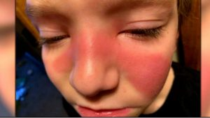 Parents Are Using Social Media To Warn Others About Sinus Strep