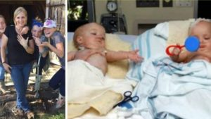 Almost a Decade After Surgery, Formerly Conjoined Twins Say Their Life As Teens Is Normal