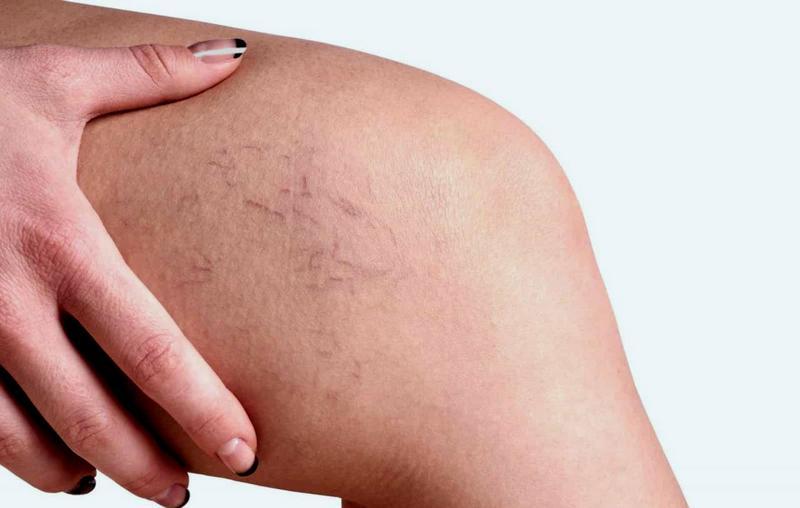 Exfolierea pielii in sarcina