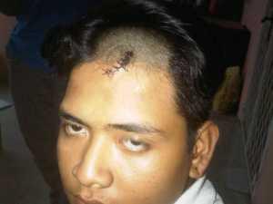 Fadli 'Pak Ogah' korban Pengkeroyokan