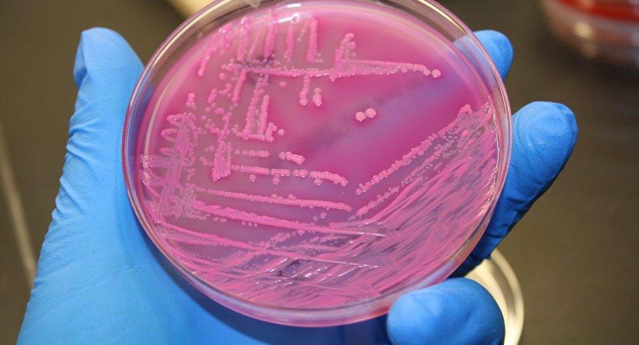 Bactéria E-coli