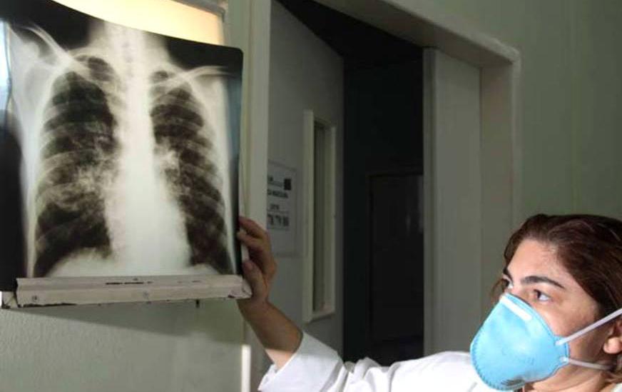 GDF quer política única para combater a Tuberculose -bernadetealves.com