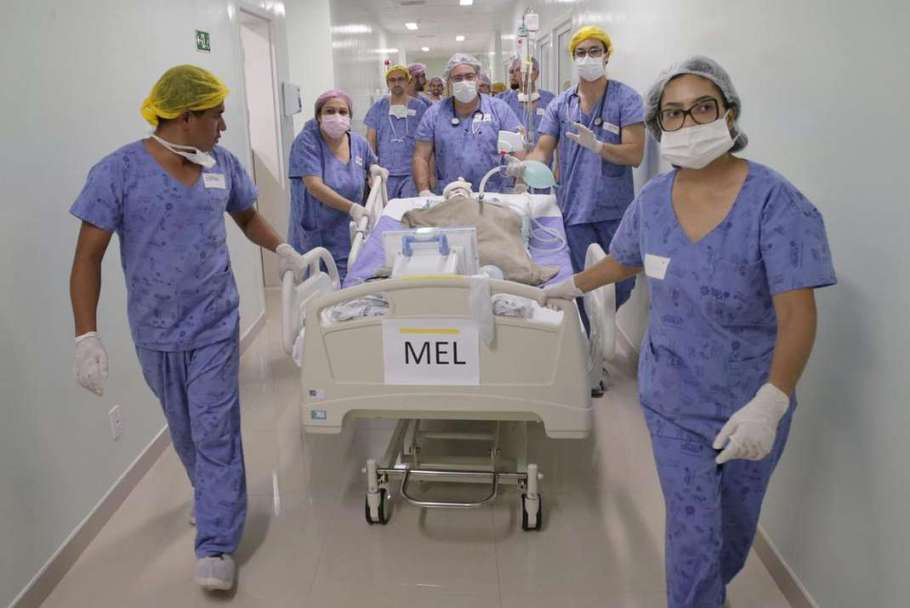 Médicos de Brasília separam crianças unidas pelo crânio - Bernadete Alves