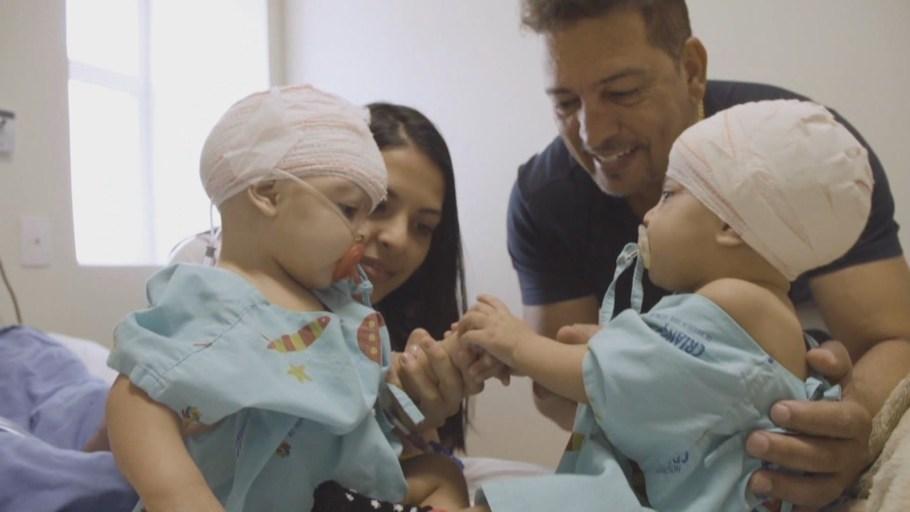 Gêmeas Mel e Lis se reencontram após cirurgia - Bernadete Alves