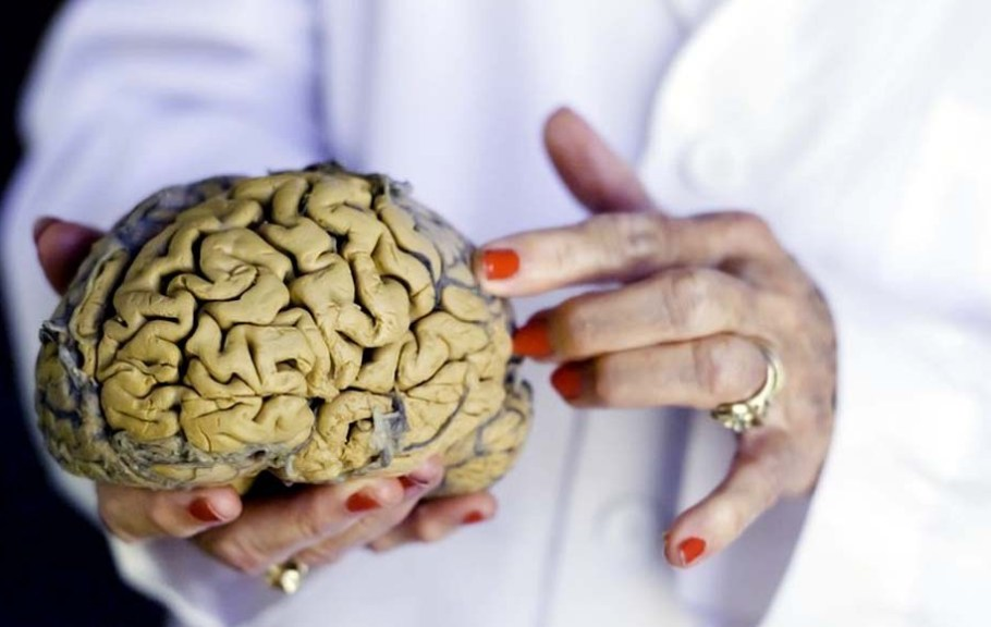 Litio pode reverter males de radiação no cérebro  - Bernadete Alves