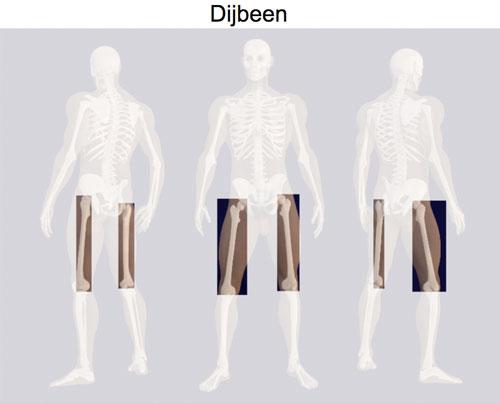 Skelet met accent op ht bot dijbeen