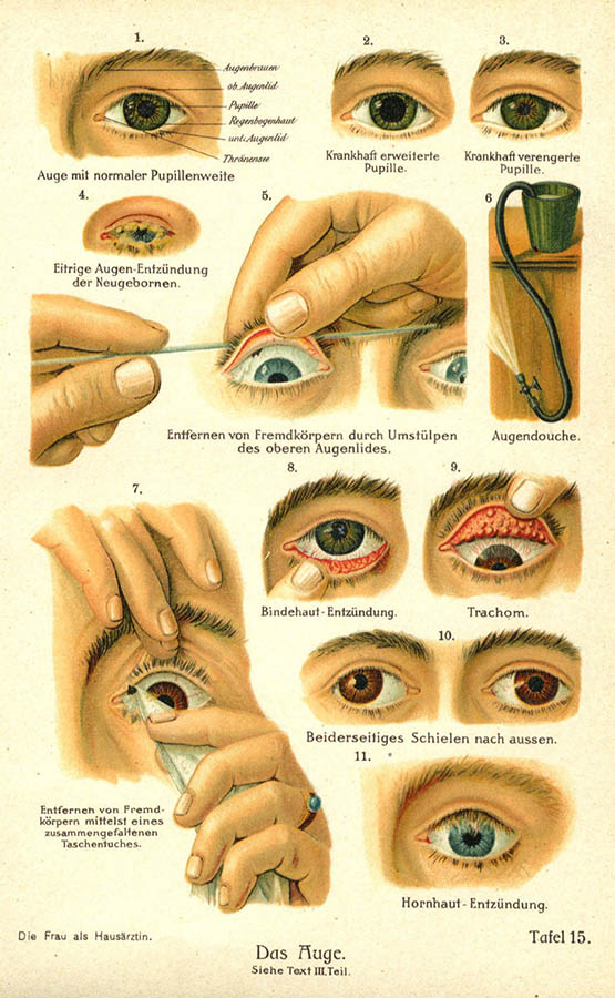 Übersicht über verschiedene Krankheiten des Auges