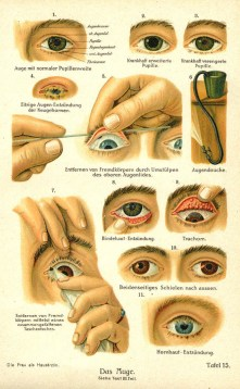 Augenarzt, Augenkrankheiten, Schielen, Pupille, Auge