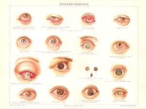 Litho: Augenkrankheiten auf einer Bildtafel