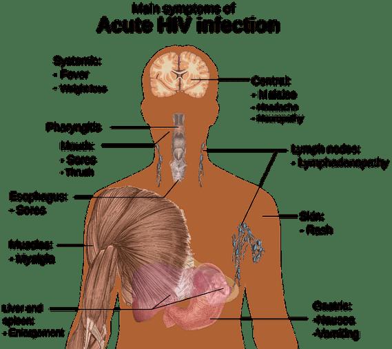 HIV symptoms acute infection AIDS cure london patient