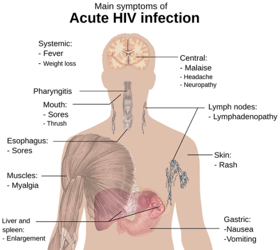 HIV symptoms acute infection AIDS cure london patient
