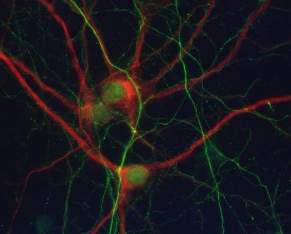 alzheimer disease neuron