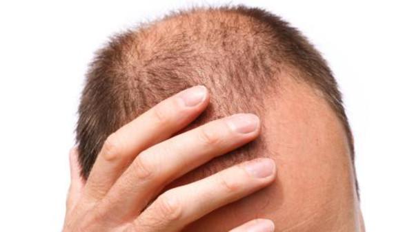 ماذا يحدث للأصلع بعد زراعة الشعر؟