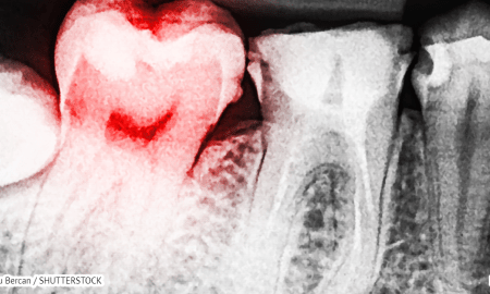 13 signs you have a toxic tooth infection and how to treat it before going to a dentist hangover cure - 13 signs you have a toxic tooth infection and how to treat it before going to a dentist – Hangover Cure