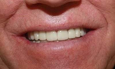 After dental reconstruction with emax porcelain