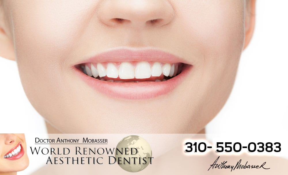 Cosmetic Dentistry Los Angeles