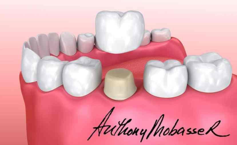 Porcelain Veneers and Dental Crowns