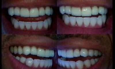 After correction with porcelain veneer Emax