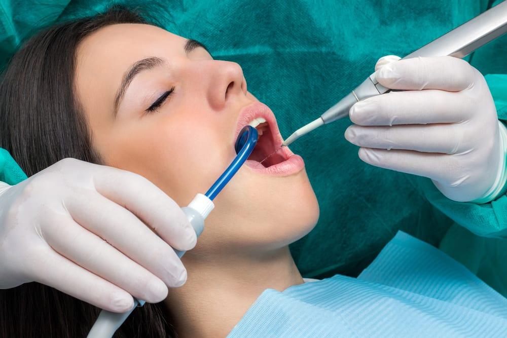 top los angeles implant dentist