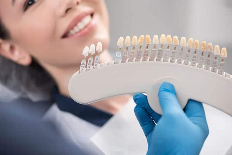 How Much Do Porcelain Veneers Cost In Los Angeles