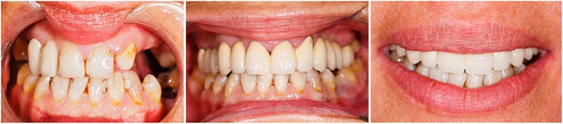 Before Dental Reconstruction in Los Angeles