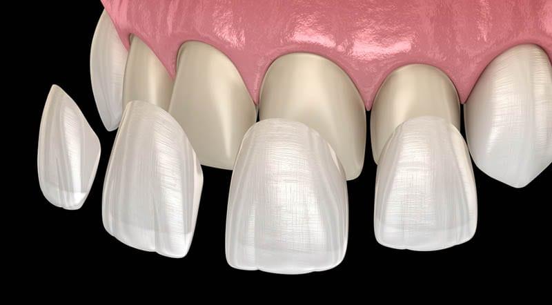 Dental Veneers in Los Angeles