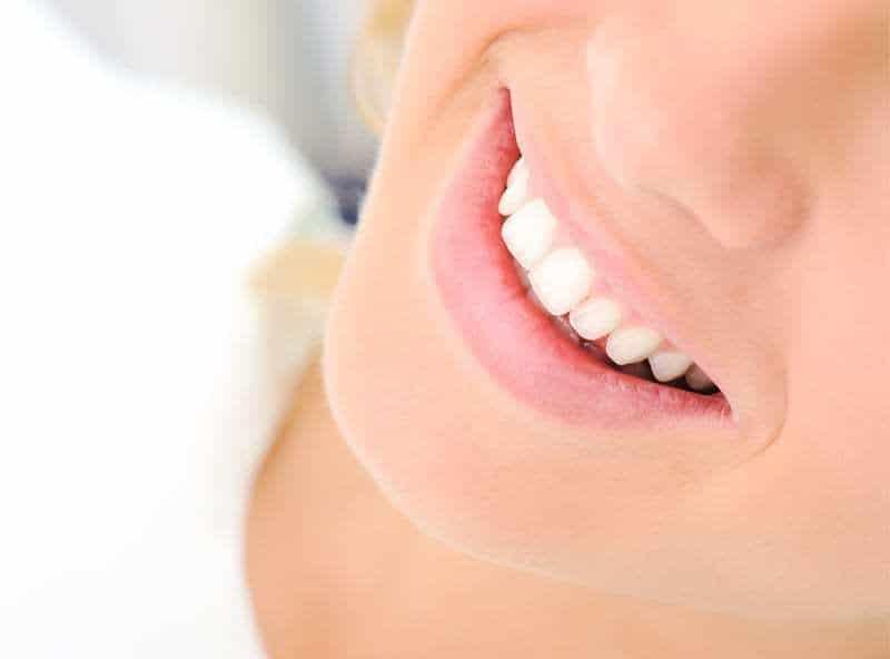 best teeth whitening in Beverly Hills