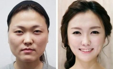 bone shaving surgery