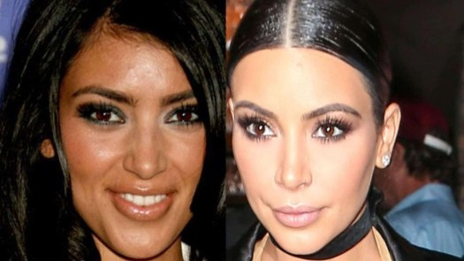 kim kardashian cosmetic surgery