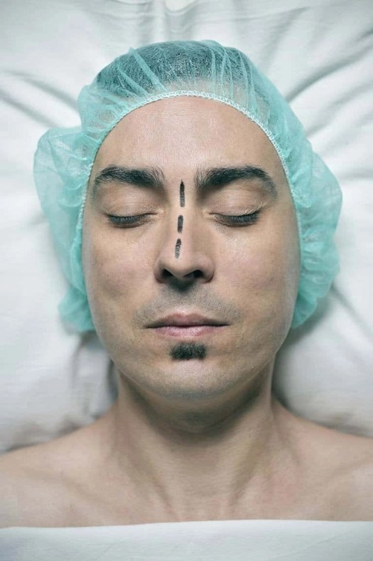 cosmetic surgery for man with rhinoplasty