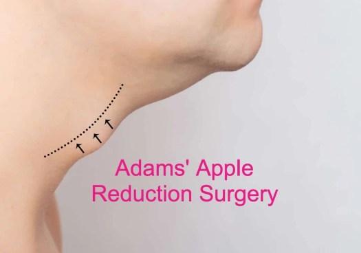 tracheal surgery