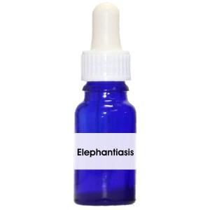 Elephantiasis ( Lymphstau der Beine)