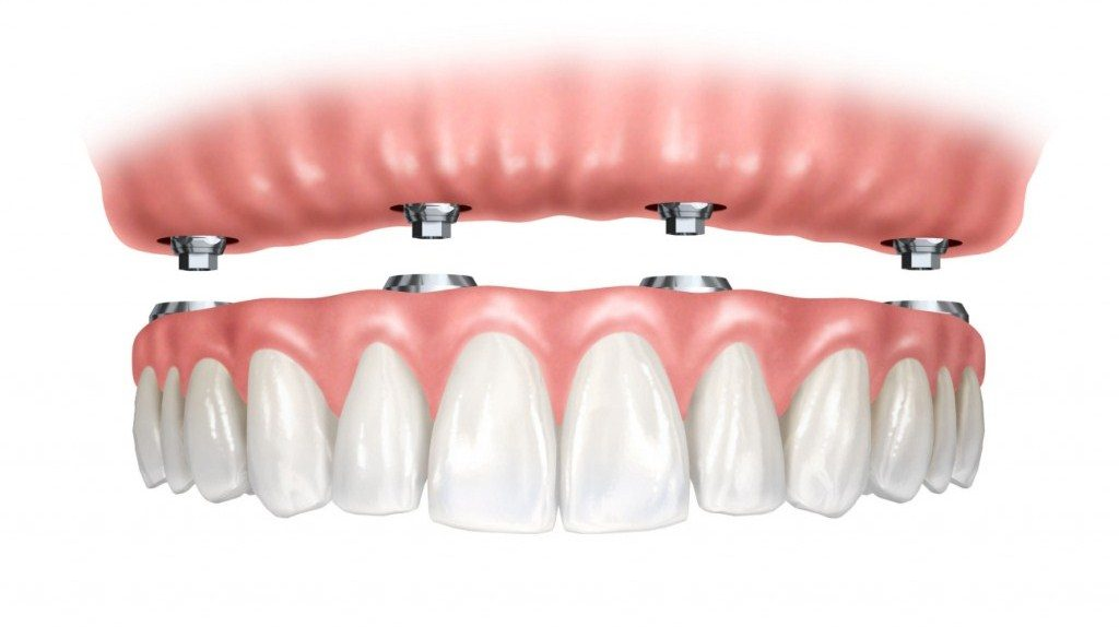 How To Help Seniors Cope With Poor Teeth