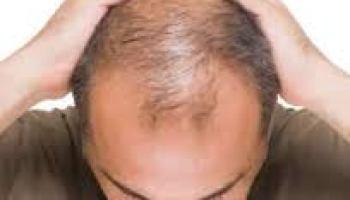 Corona Pandemic – Is hair transplant safe, Dr.Arihant Surana