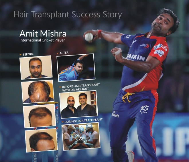 , THANK YOU ALVI ARMANI FOR GIVING ME BACK MY HAIR AND MY CONFIDENCE-AMIT MISHRA (international cricketer), Dr.Arihant Surana
