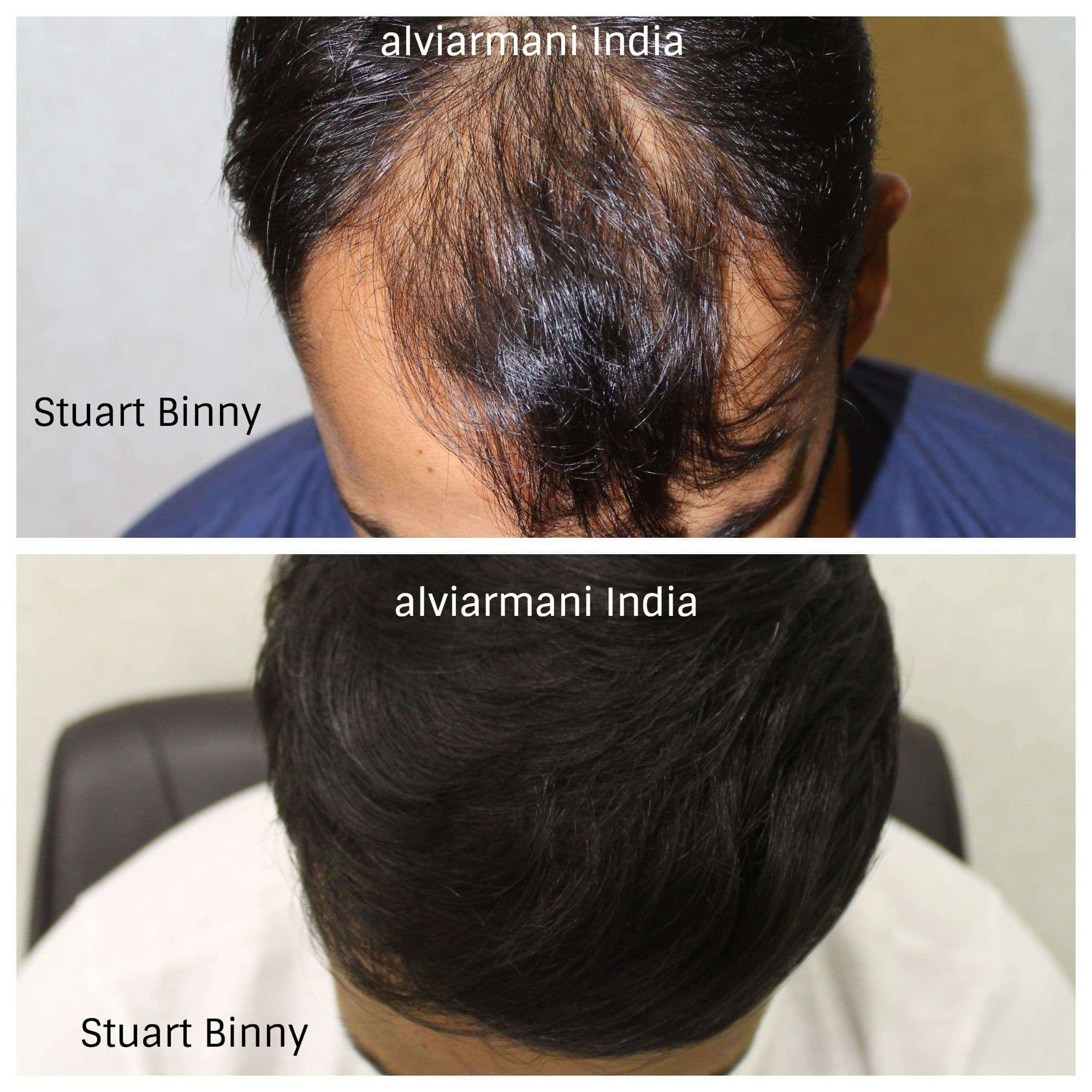 Monaris Hair Transplant's -State of the art surgical centre in India and other countries