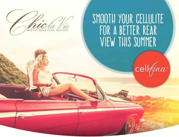 Cellfina Cellulite Treatment
