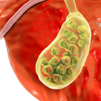 Read more about the article Understanding The Gallbladder And Foods to Avoid for Gallstones