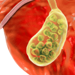 Understanding The Gallbladder And Foods to Avoid for Gallstones