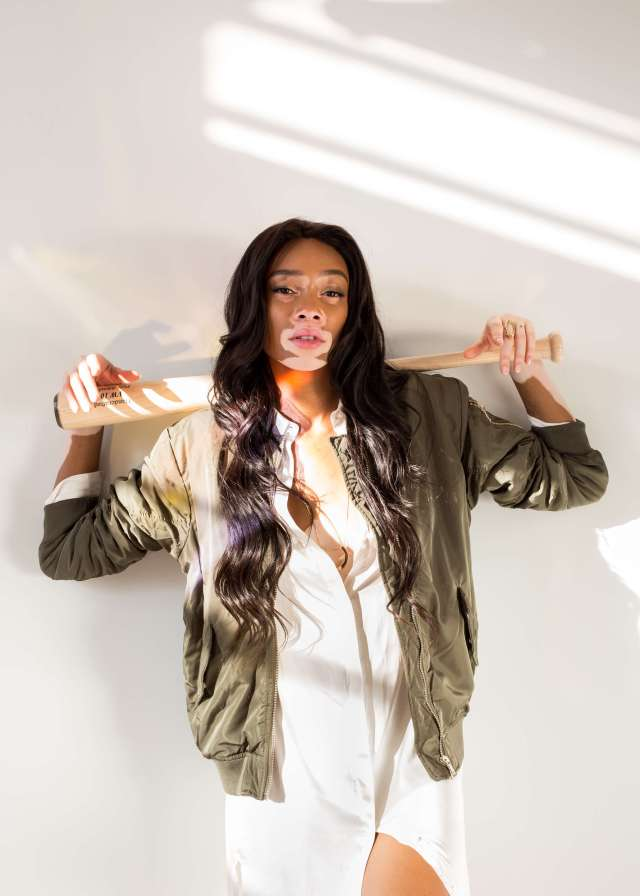 Winnie Harlow awoesem picture