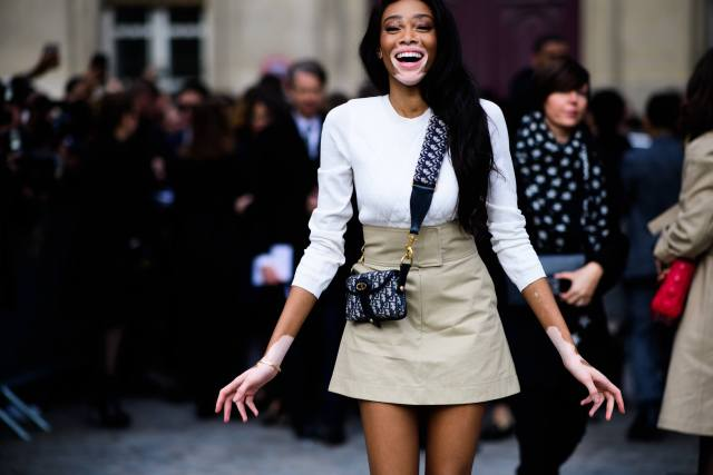 Winnie Harlow beautiful pictures