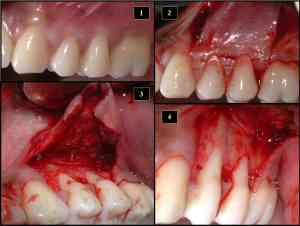 Why Loose Teeth In Adults And How To Fix It | TeethMastery