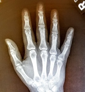 x-ray of right hand with a break at the base of the 5th metacarpal
