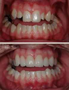 Tooth Recontouring