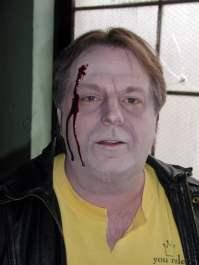 brad bullet wound 1