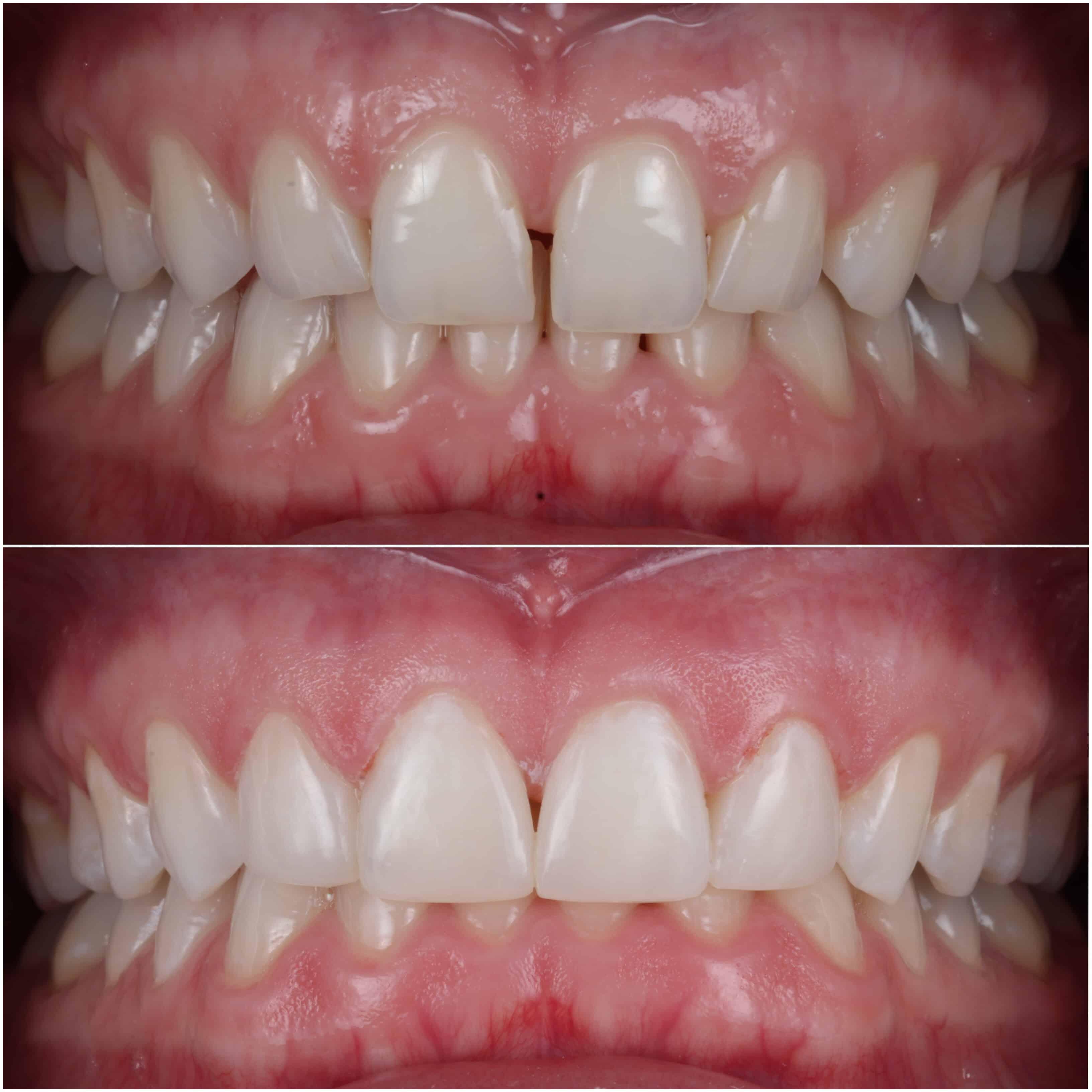 Composite Bonding To Close Tooth Gap By Dr Celine Higton At Beverley Dental Raynes Park London