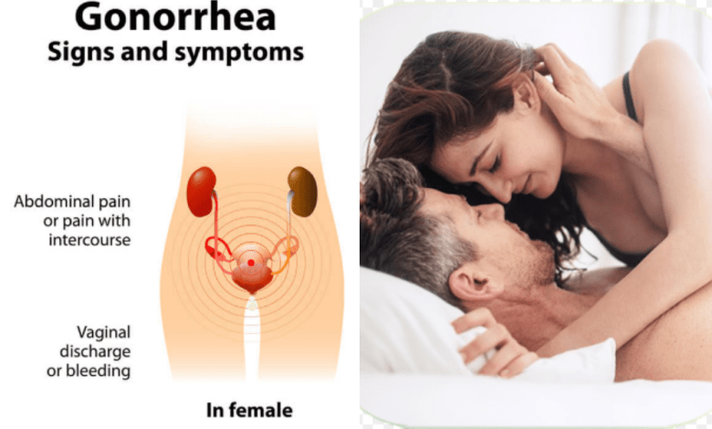 All you need to know about gonorrhea treatment Part 2   Be ...