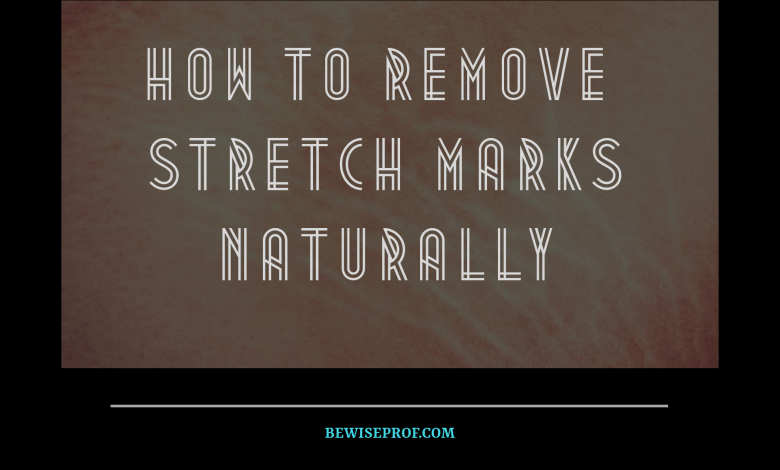 How To Remove Stretch Marks Naturally