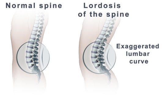 large_spine_lordosis